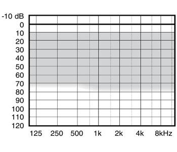 аудиограмма слухового аппарата Widex Mind440 M4-CIC