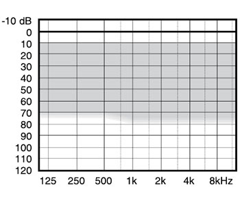 аудиограмма слухового аппарата Widex Mind440 M4-CIC-TR