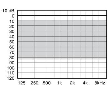 аудиограмма слухового аппарата Widex Mind440 M4-X
