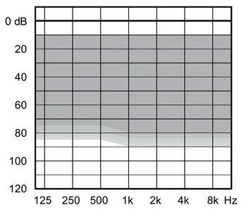 аудиограмма слухового аппарата Widex Unique U330-CIC-M