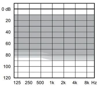 аудиограмма слухового аппарата Widex Unique U100-CIC