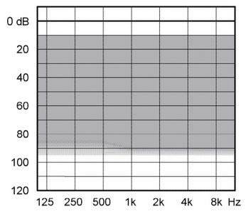 аудиограмма слухового аппарата Widex Unique U330-FA