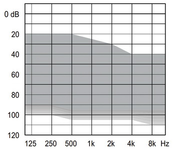 аудиограмма слухового аппарата Widex Unique U100-FA P