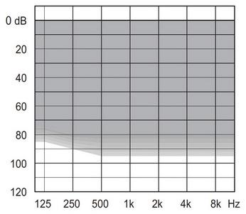 аудиограмма слухового аппарата Widex Unique U220-FM