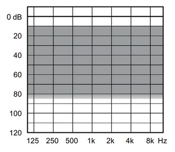 аудиограмма слухового аппарата Widex Unique U220-XP