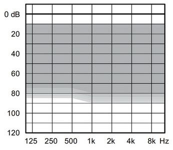 аудиограмма слухового аппарата Widex Unique U30-CIC-M
