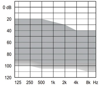 аудиограмма слухового аппарата Widex Unique U30-FA P