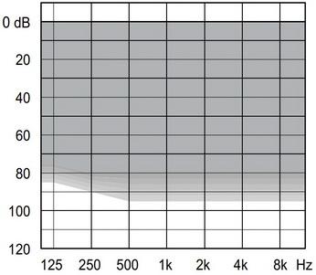 аудиограмма слухового аппарата Widex Unique U30-FM