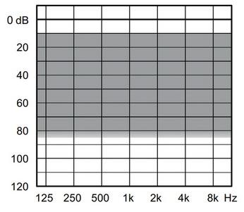 аудиограмма слухового аппарата Widex Unique U30-XP