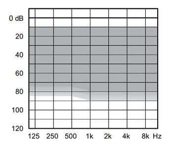 аудиограмма слухового аппарата Widex Unique U50-CIC