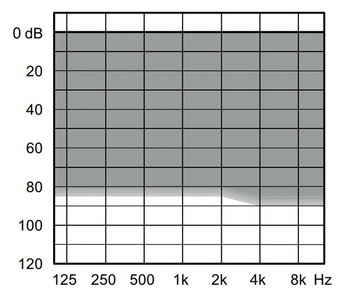 аудиограмма слухового аппарата Widex Unique U50-PA