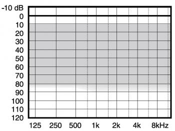 аудиограмма слухового аппарата Widex Menu ME5-9+